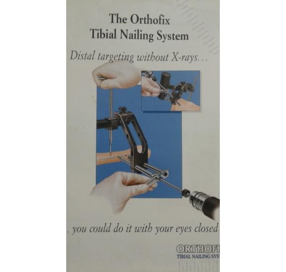 ORTHOFIX TIBIAL NAILING SYSTEM